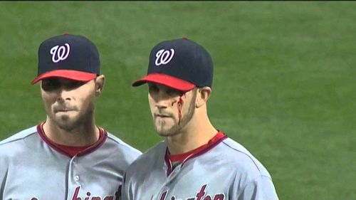 Bryce Harper Bleeding